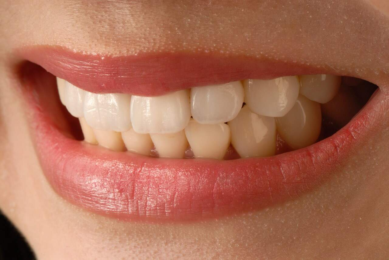 What problems can Porcelain Veneers fix? - Soothing Care Dental